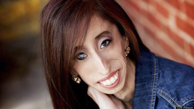 models Lizzie Velasquez 22 years crude photoshoot home