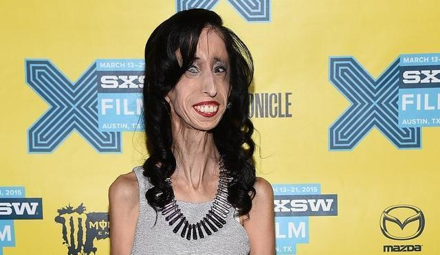 Hot photo Lizzie Velasquez tits