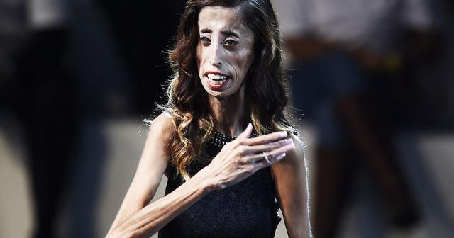 models Lizzie Velasquez young indecent picture in the club