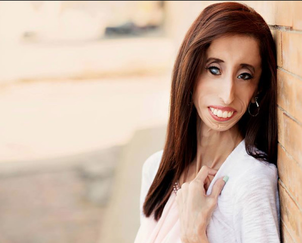 actress Lizzie Velasquez 19 years Without panties art in public